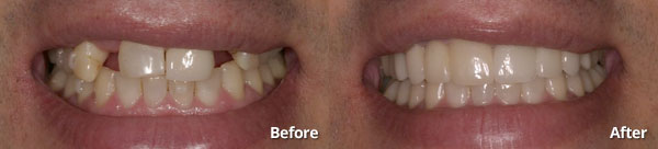 Before and after photos of bridged and veneers patient in Phoenix