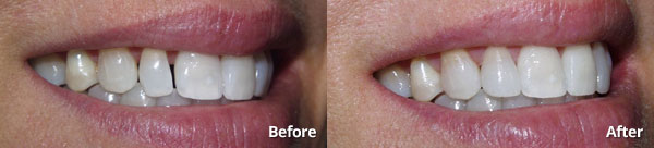 Before and after photos of a single prepless veneer at Harris Dental