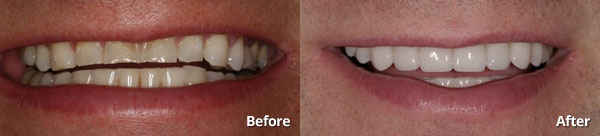 Before and after photo of porcelain veneers patient at Harris Dental