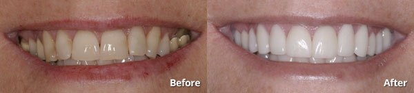 Before and after photos of patient who received 12 porcelain restorations in Phoenix