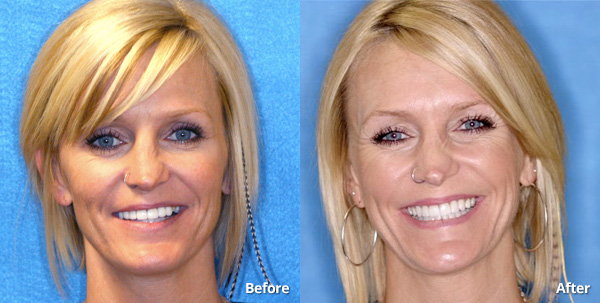 Before and after photos of a Phoenix porcelain veneers patient