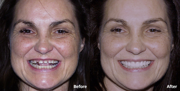 Before and after photos of a porcelain restorations patient at Harris Dental
