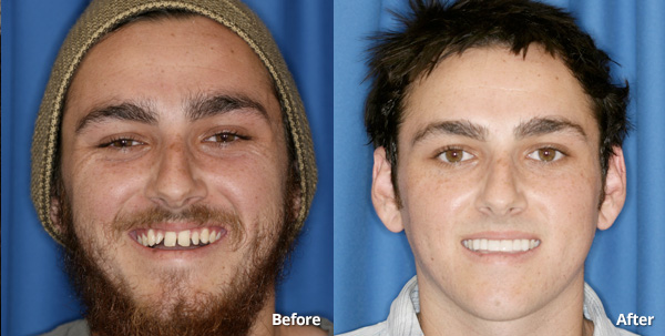 Before and after photos of prepless porcelain veneers in Phoenix patient