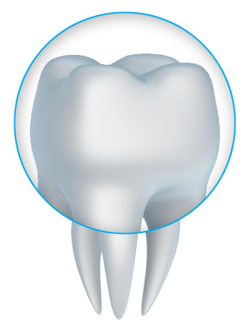 Dental crowns and tooth crown dentistry with a Mesa dentist near Phoenix