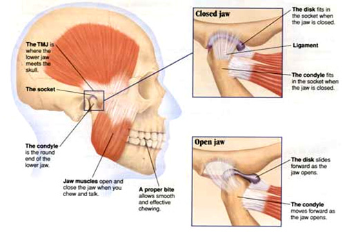 TMD headaches and TMJ treatment with a Phoenix dentist near Scottsdale and Queen Creek
