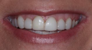 Before and after photos of porcelain veneers in Phoenix AZ