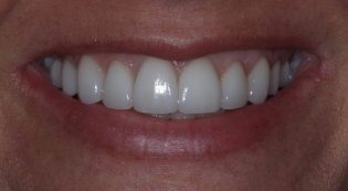 Before and after photos of client with porcelain veneers in Phoenix AZ