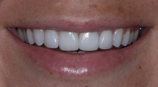 After receiving four porcelain veneers photo