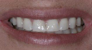 Satisfied customer before receiving porcelain veneers at Harris Dental