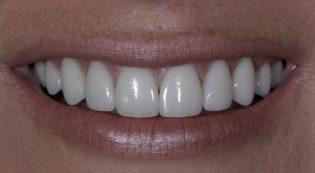 Satisfied customer after receiving porcelain veneers at Harris Dental