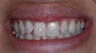 Before dental veneers picture
