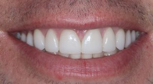 After porcelain veneers and dental crowns appointments with Dr. Harris