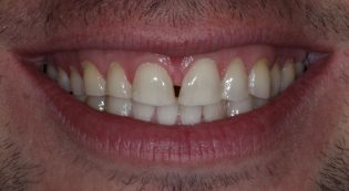 Before porcelain veneers and dental crowns picture