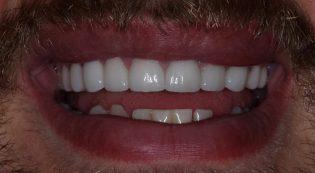 Harris Dental patient after porcelain veneers photo
