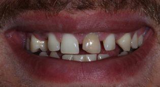 Harris Dental patient before porcelain veneers and bridge photo
