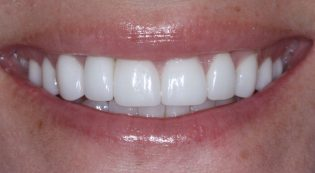 After dental implant crowns and porcelain veneers picture