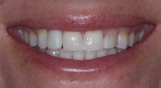 Before dental implant crown and veneers picture