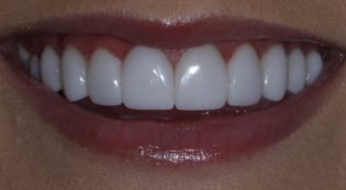 Before and after porcelain veneers picture in Phoenix