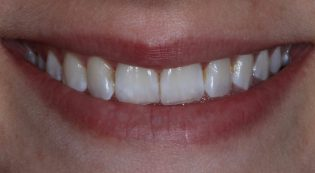 Before and after porcelain veneers picture