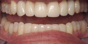 After dental implants, bridge and veneers