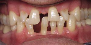 Before dental implants, bridge, and veneers