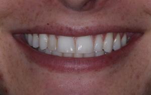 Dr. Scott Harrison dental before veneers