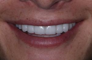 After dental veneers photo