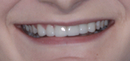 After implant and veneers photo