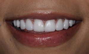 After gum contouring and veneers photo
