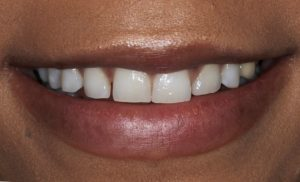 Before gum contouring and veneers photo